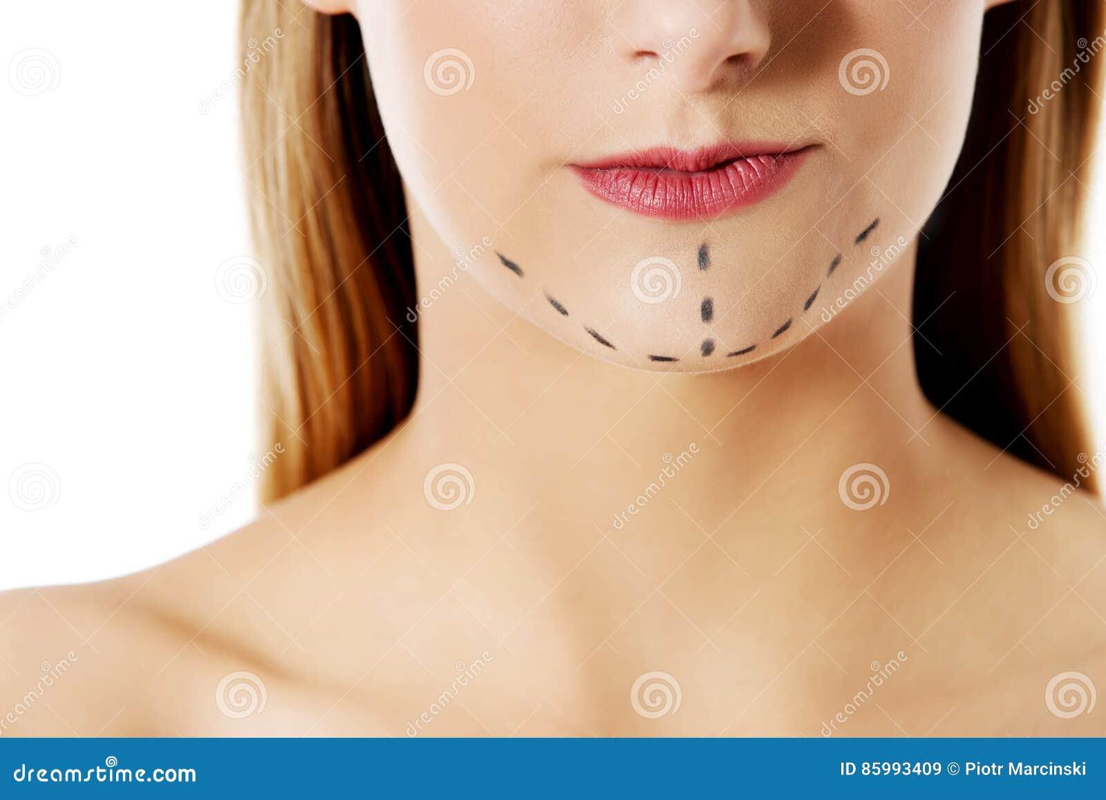 Mujer Marcada Hacia Fuera Para La Cirugía Cosmética Aislado En ...