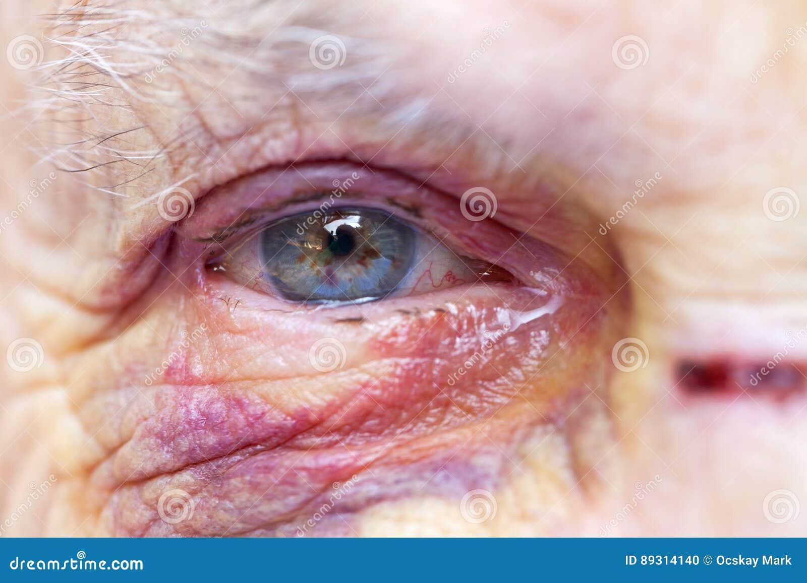 Mujer mayor herida