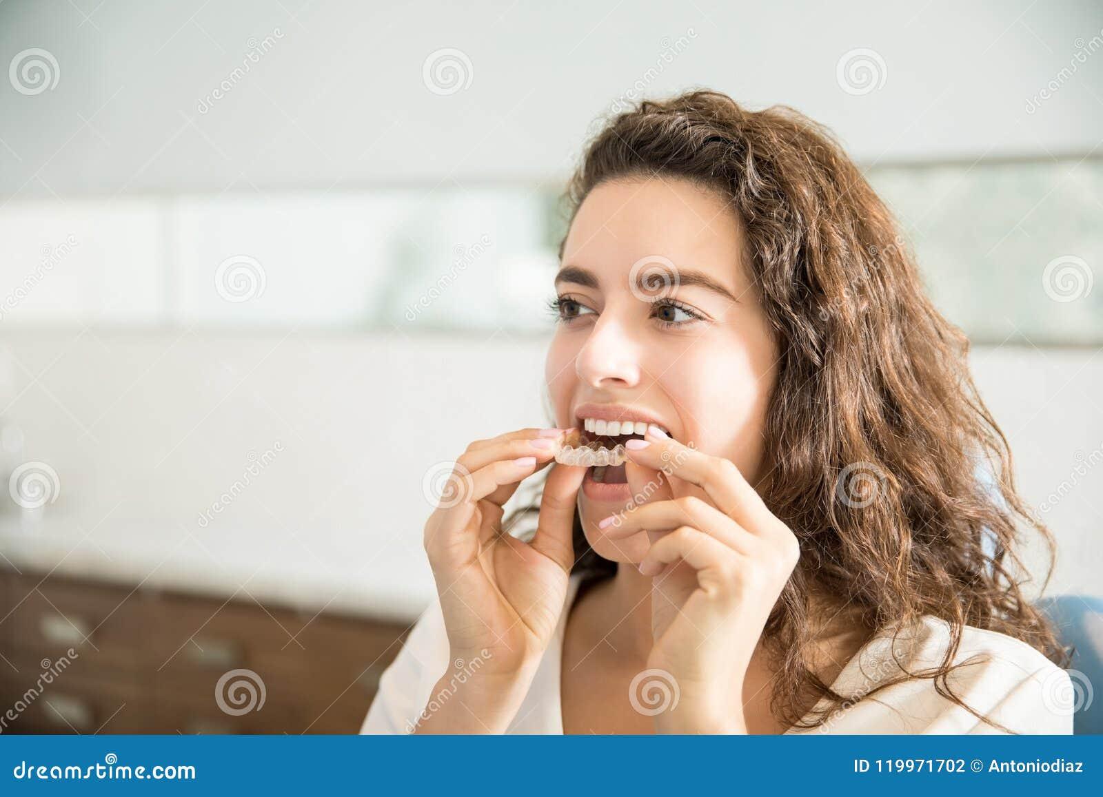 Mujer que lleva el alineador claro en clínica dental