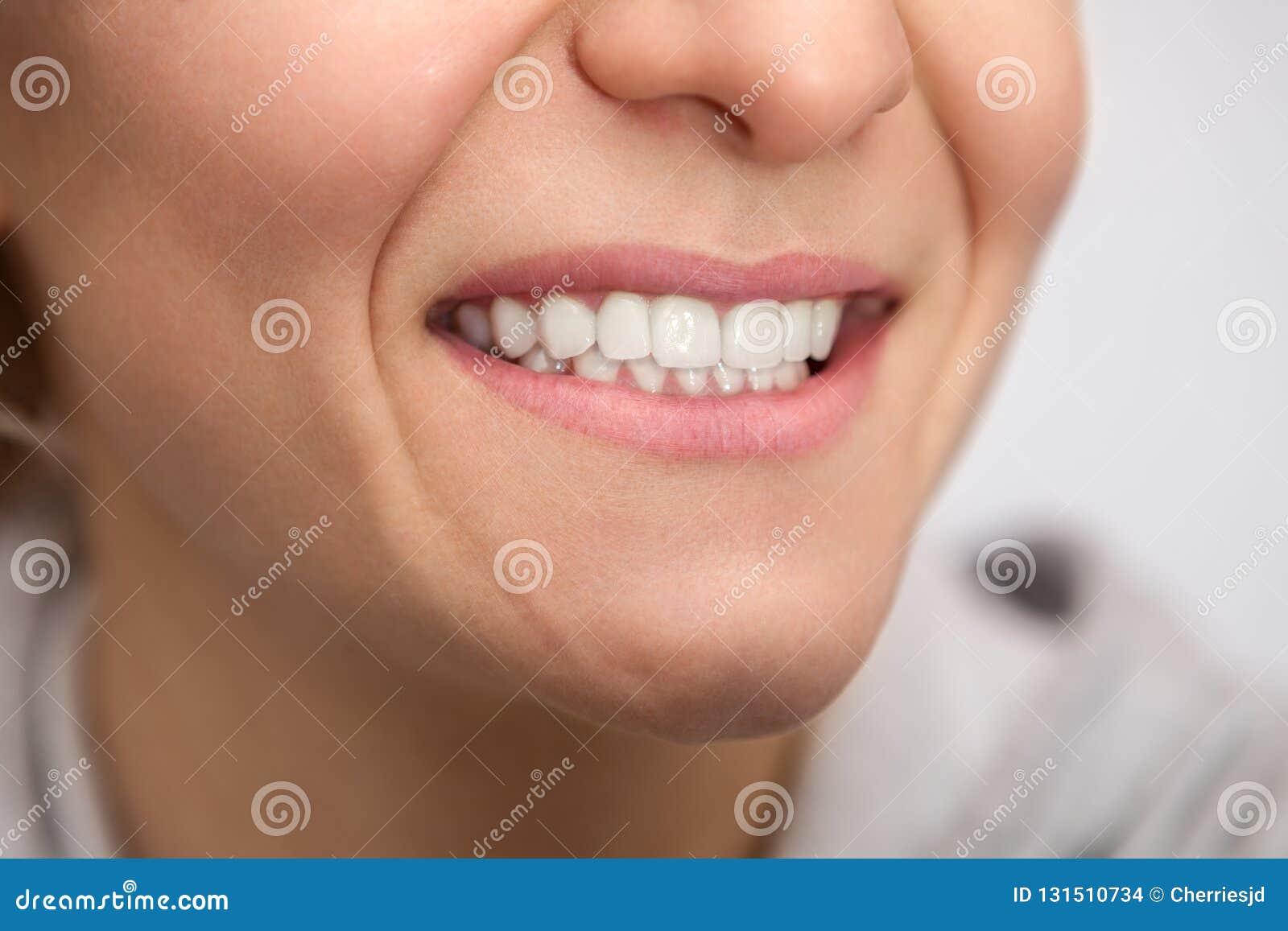 Mulher com os dentes brancos saudáveis
