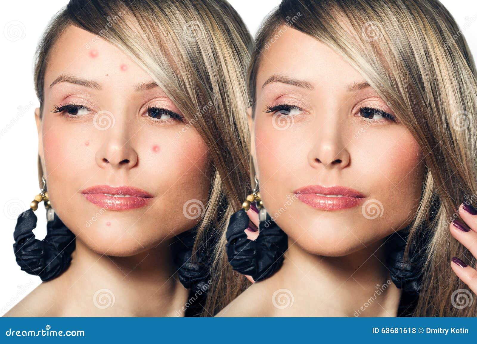 Mulher com pele do problema em sua cara