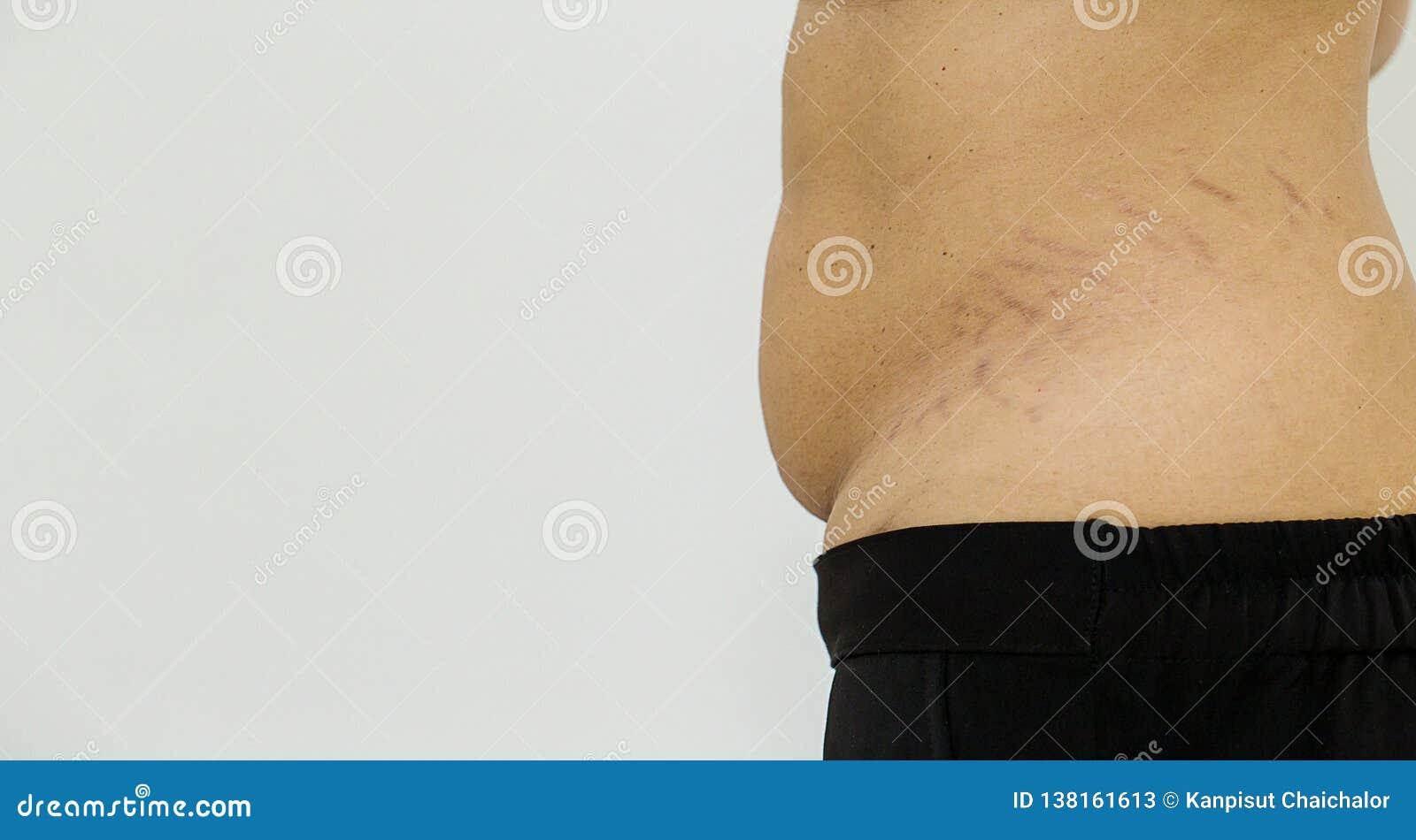 Mulher gorda do estômago do teste padrão da barriga Teste padrão marcado da cicatriz abdominal