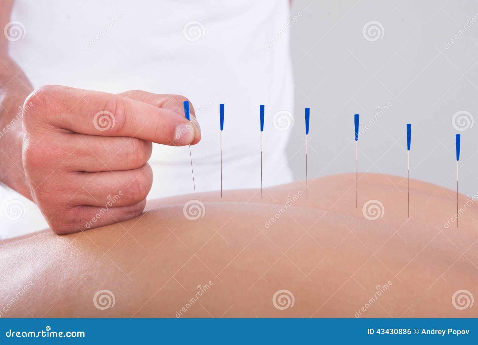 Mulher que recebe uma terapia da acupuntura
