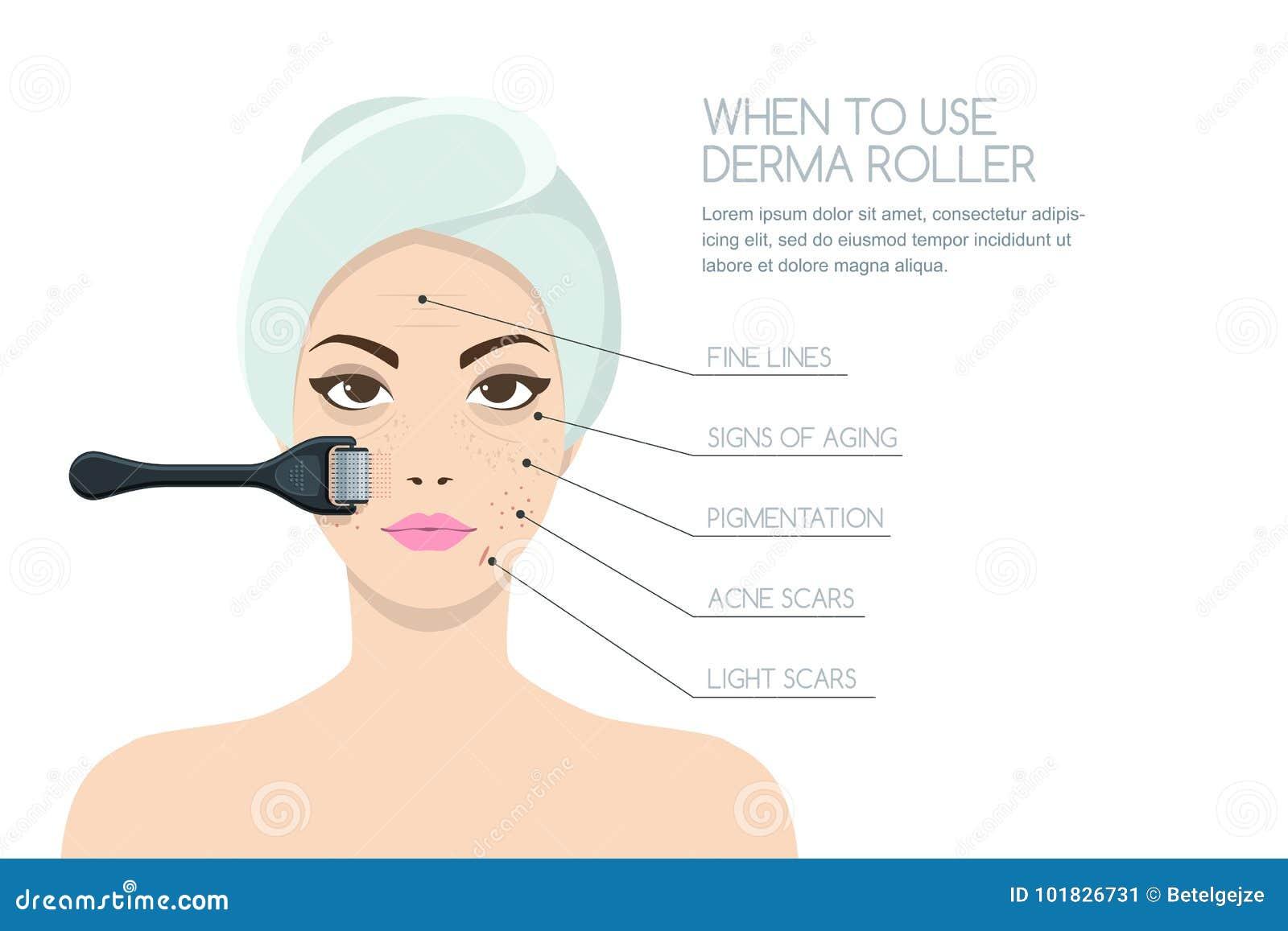 Mulher que tem rejuvenescer a terapia do rolo do derma Projeto do infographics do vetor