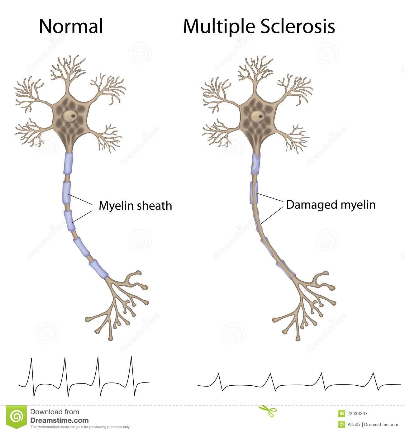multiple sclerosis online dating Online dating can help you find relationship multiple sclerosis singles - use this dating site and become dating expert.