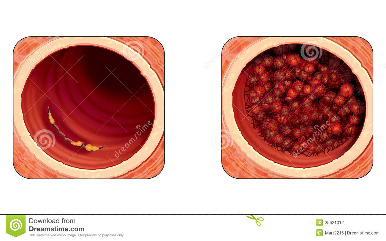 Mural thrombus stock vector illustration of humoral for Aortic mural thrombus treatment