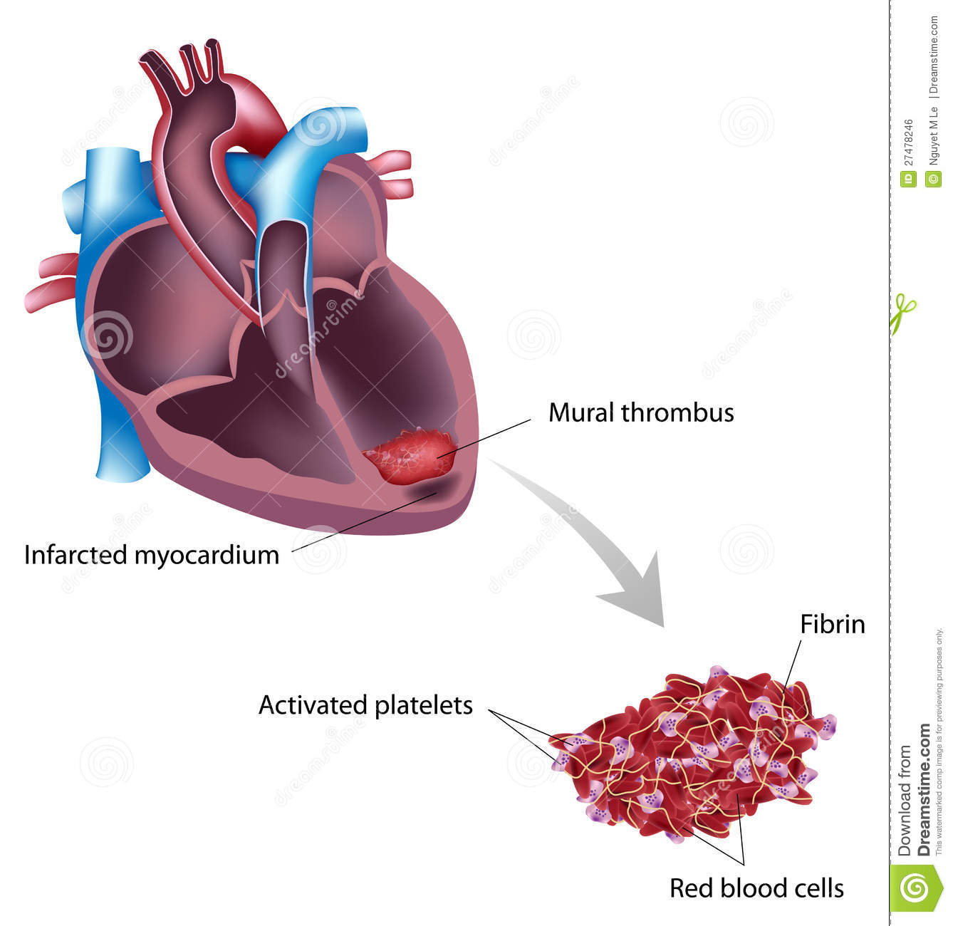 Mural thrombus royalty free stock image image 27478246 for Mural thrombus aorta