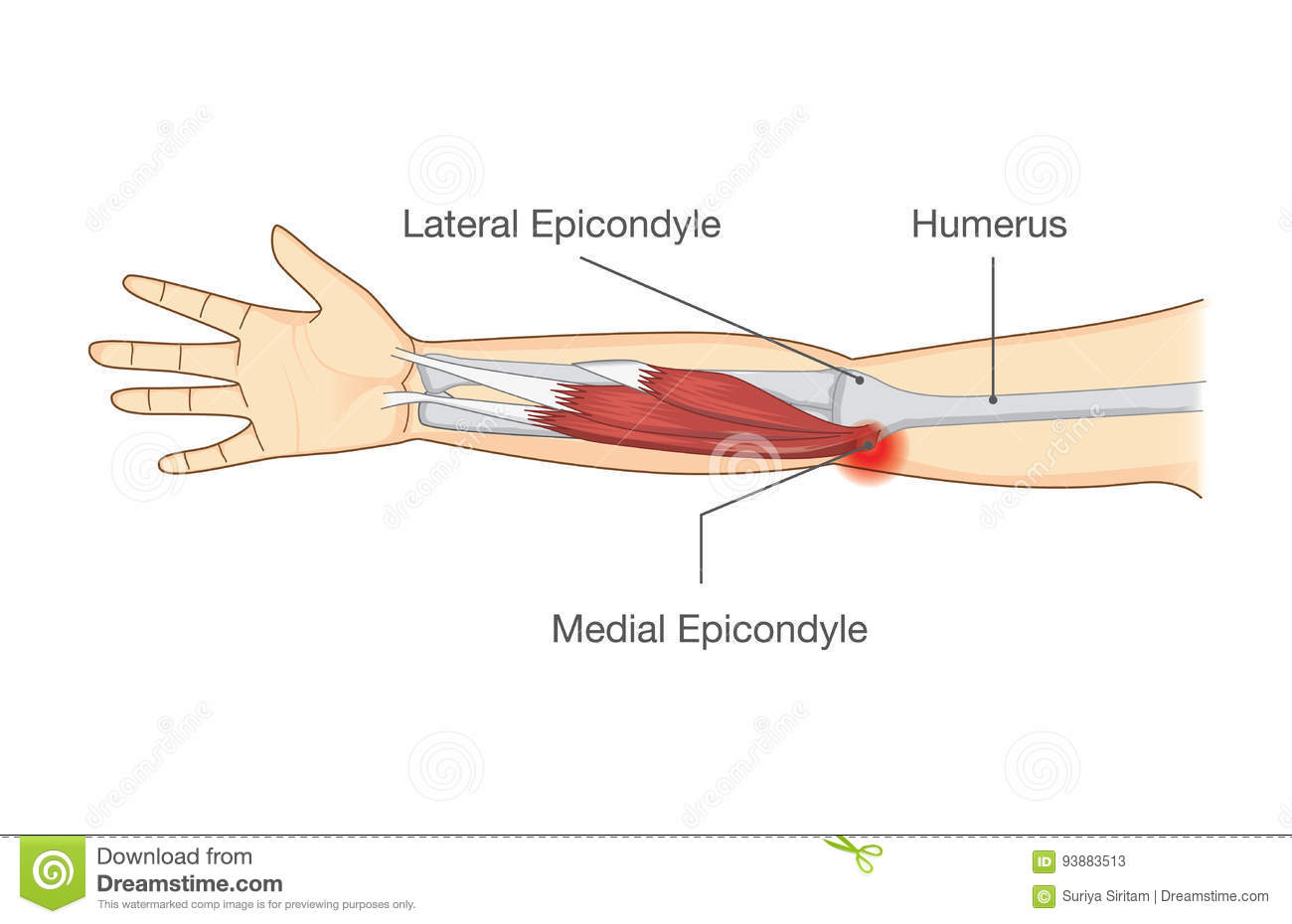 Muscle Injury And Tear In Tendon At Elbow Area. Stock Vector ...