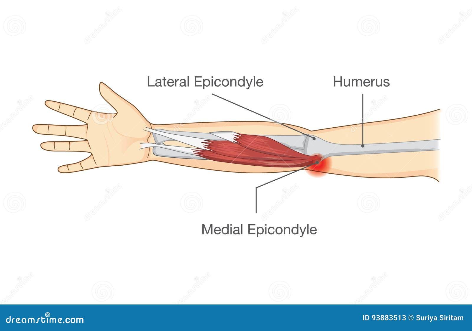Muscle Lesión Y Rasgue En Tendón En El área Del Codo Ilustración del ...