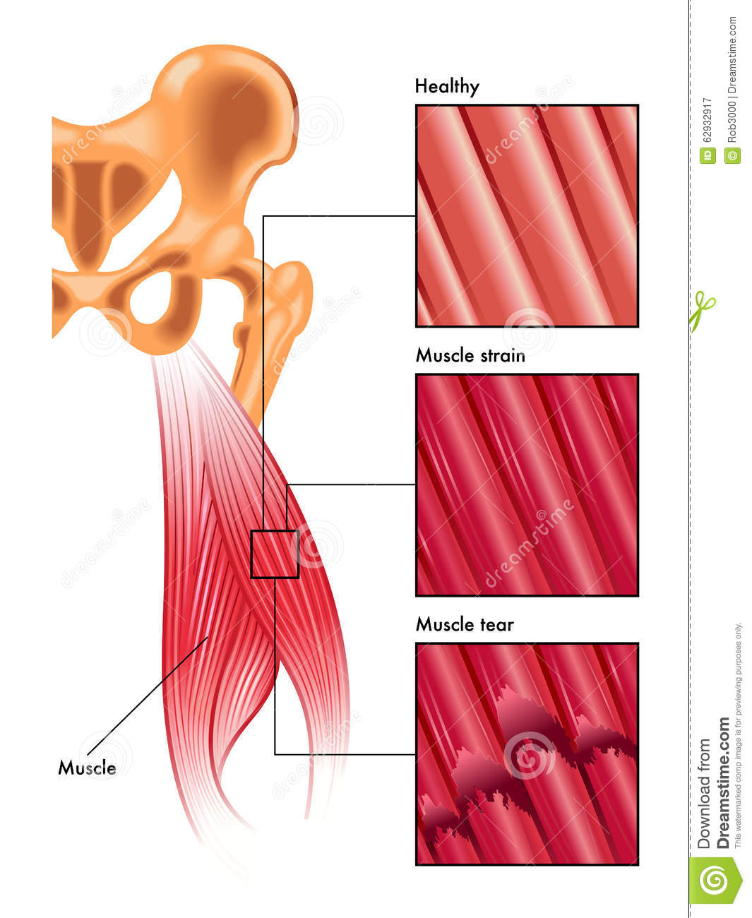 How to Treat a Pulled Muscle: 11 Steps (with Pictures) Pictures of pulled back muscles