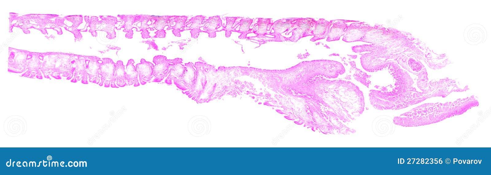 Musslagäl under mikroskopet