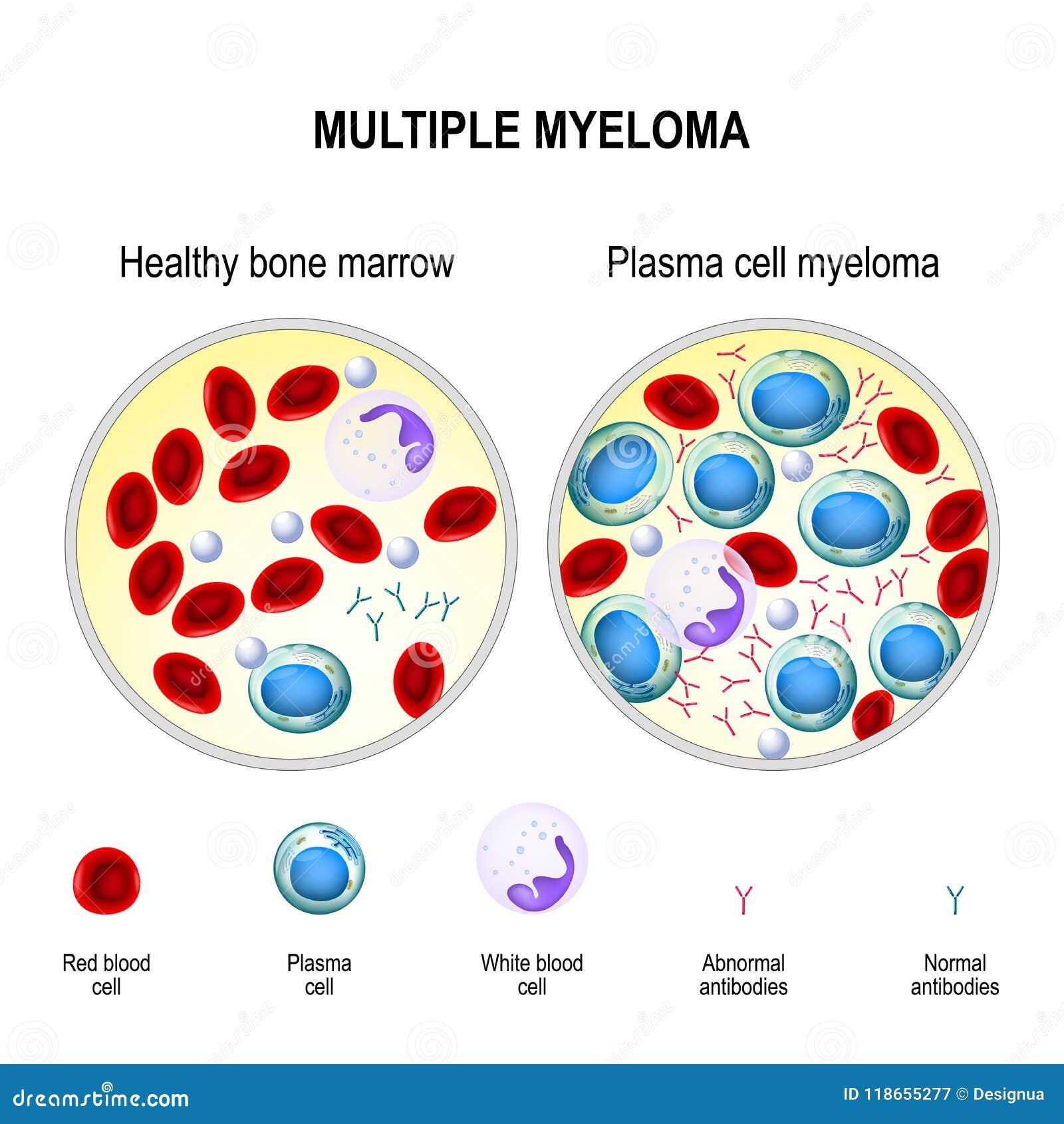 Myélome Multiple Myélome De Cellules De Plasma Illustration de ...