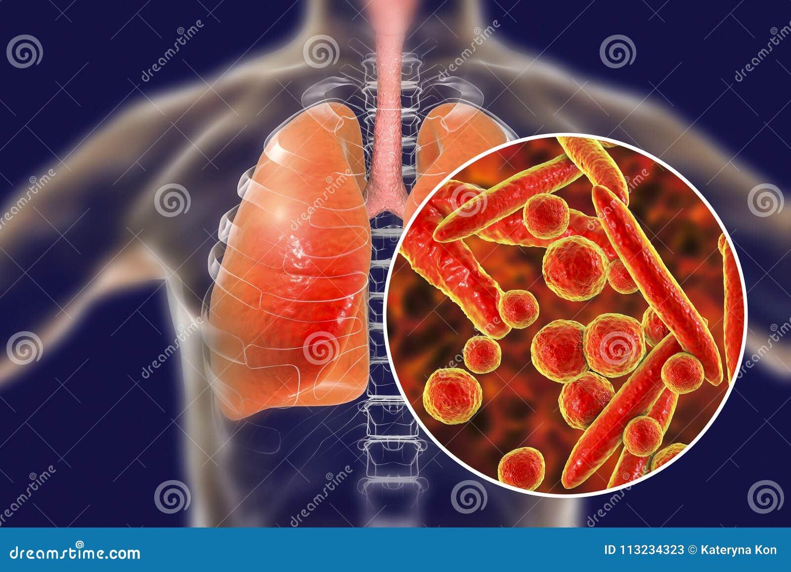 Mycoplasma pneumoniae bakterie w ludzkich płucach