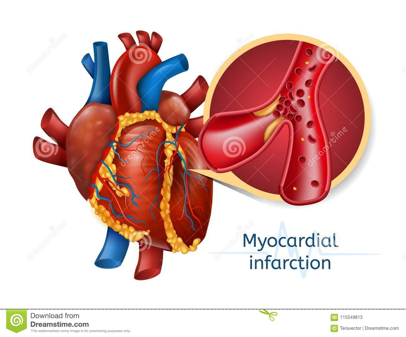Myocardial Infarction 3d Realostic Heart Stock Vector