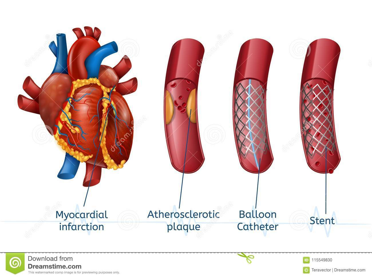 Myocardial Infarction. 3d Realostic Stent In Heart Stock Vector ...