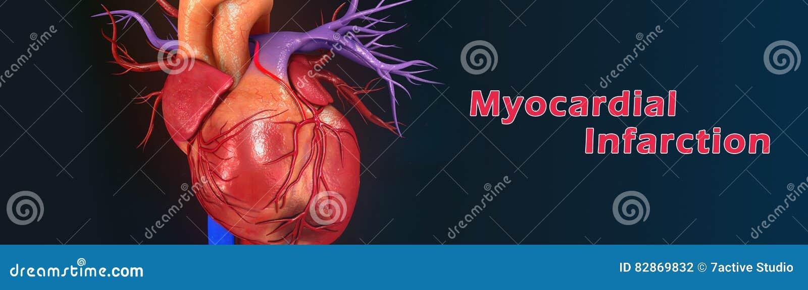 Myocardial infarction stock photo. Image of diesnsymptoms - 82869832