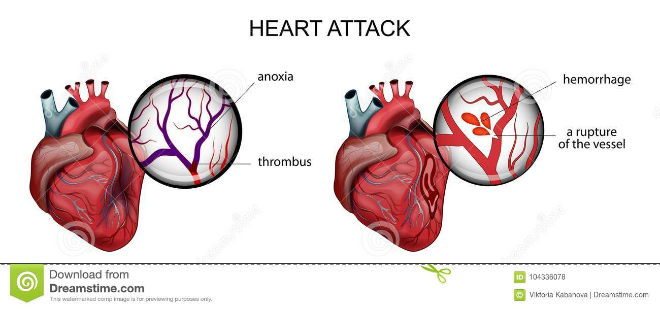Myocardial Infarction. Thrombosis And Hemorrhage Stock Vector ...