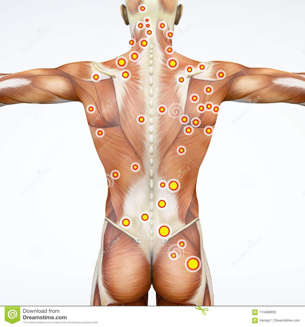 Back View Of A Man And His Trigger Points. Anatomy Muscles. 3d ...