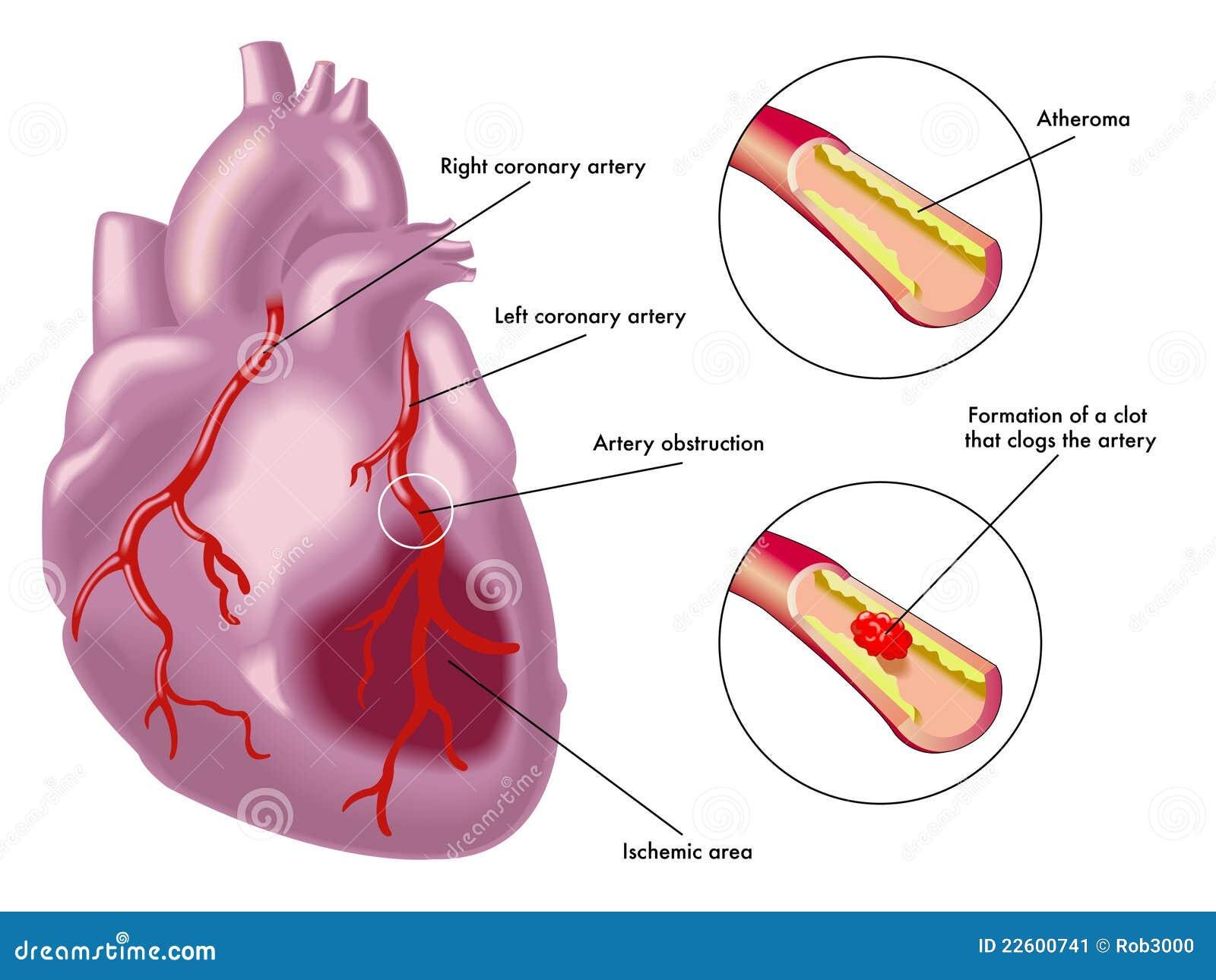 Myokardiale Infarktbildung