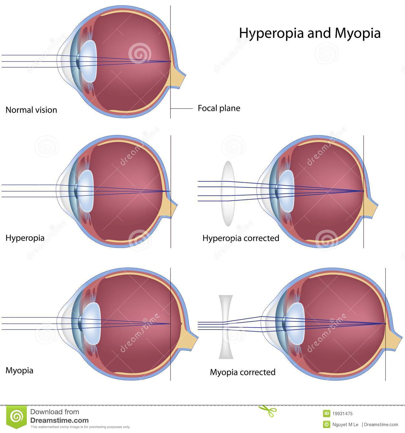 What Is Hyperopia (Farsightedness)