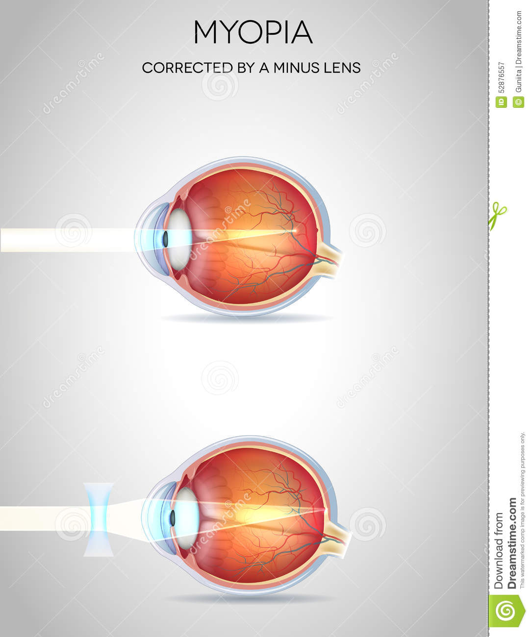 eye diseases nearsightedness essay Eye diseases like macular degeneration, glaucoma, and cataracts, can cause vision problems symptoms vary a lot among these disorders, so keep up with your eye exams  some vision changes can be .