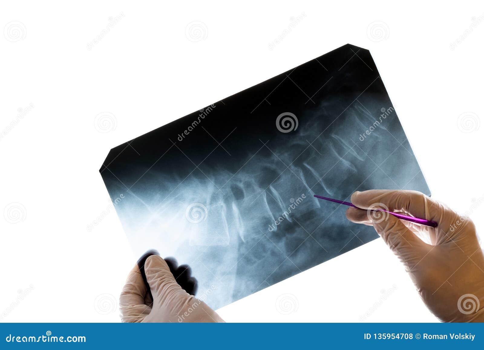 Närbild av doktors händer i handskar, som rymmer en pekare och visar ryggen i bilden Röntgenstråle av de cervikala kotorna