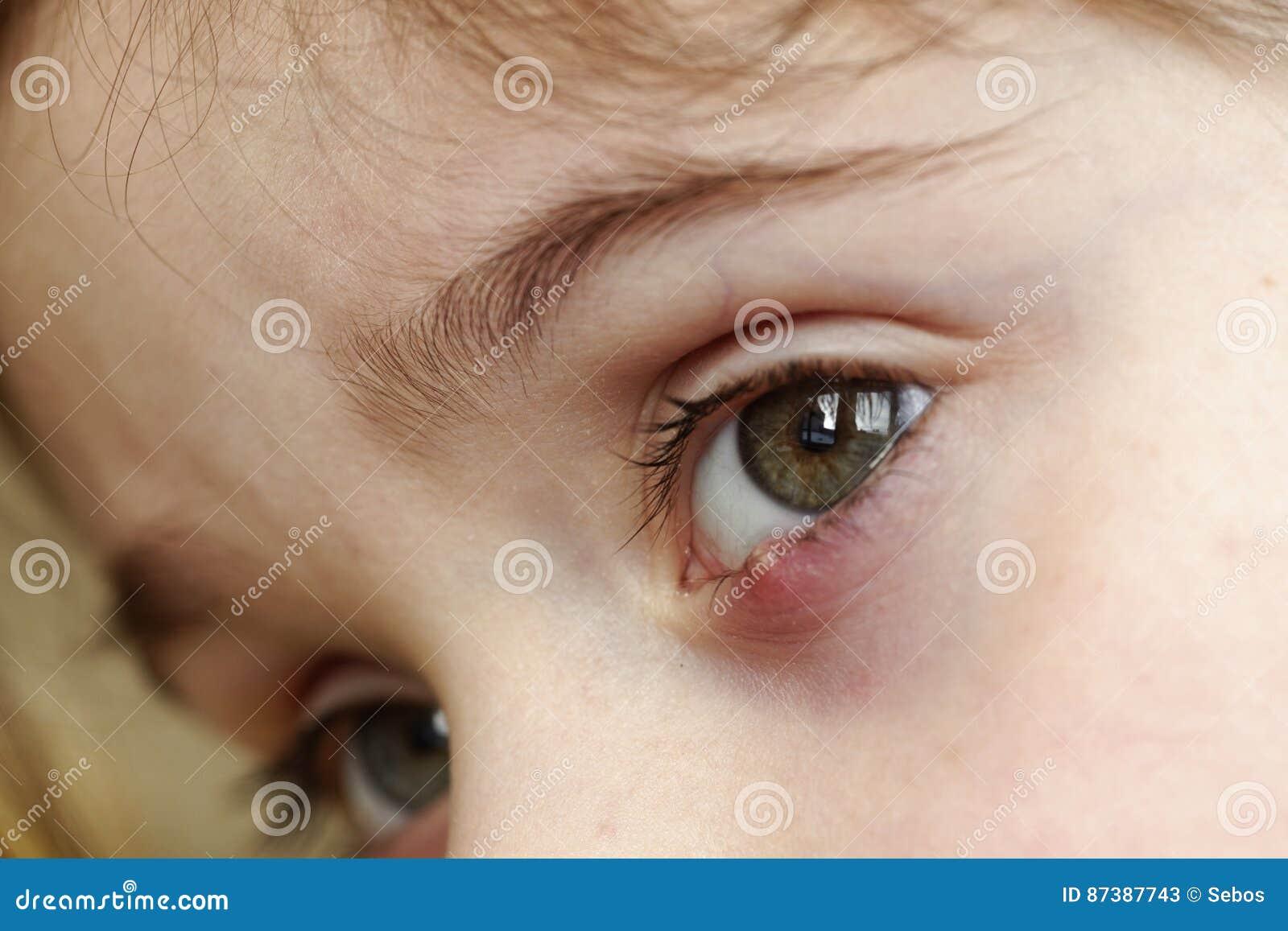 Närbild av en vagel för öga för barn` s Ögon- hordeolumsjukdom