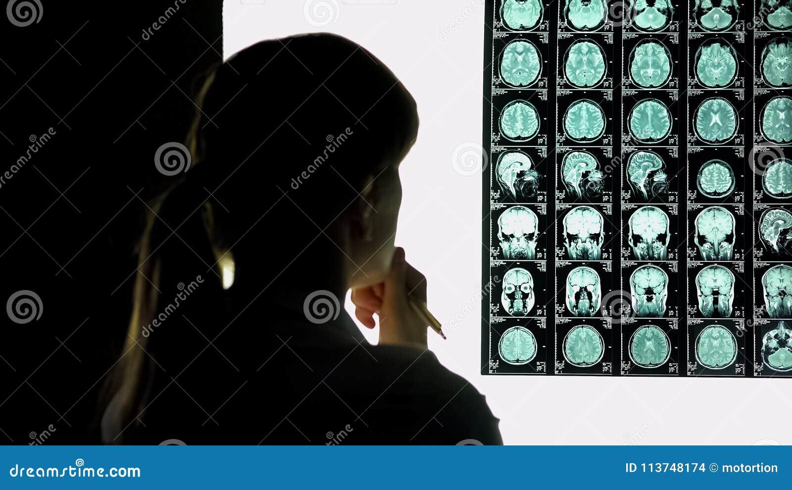 Nadenkende vrouwelijke arts die hersenenaftasten, medisch onderzoek, moeilijk geval analyseren