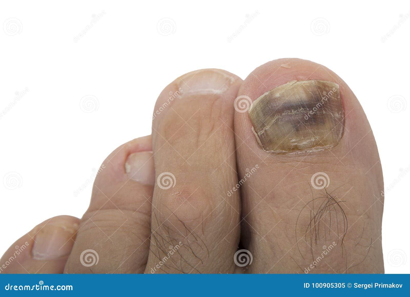 Nail fungus, melanoma stock image. Image of bacteria - 100905305