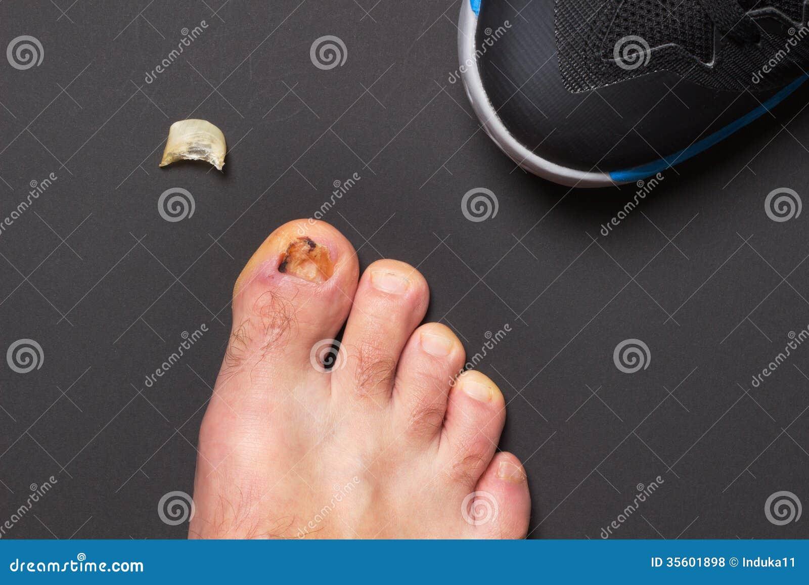 Nail Injury Royalty Free Stock Photos Image 35601898