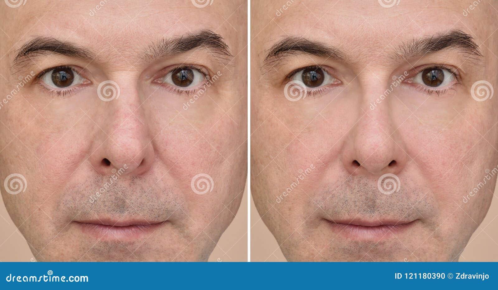 cuidados antes y despues de una cirugia de nariz