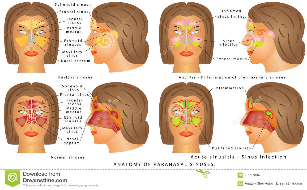 Nasal sinus stock vector. Illustration of ethmoid, illness - 95397004