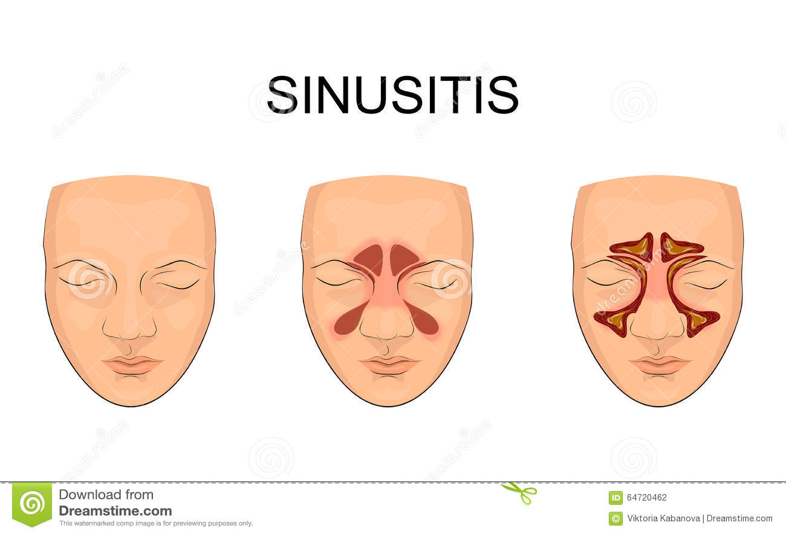 Nasenhöhle entzündung vektor abbildung. Illustration von vorder ...