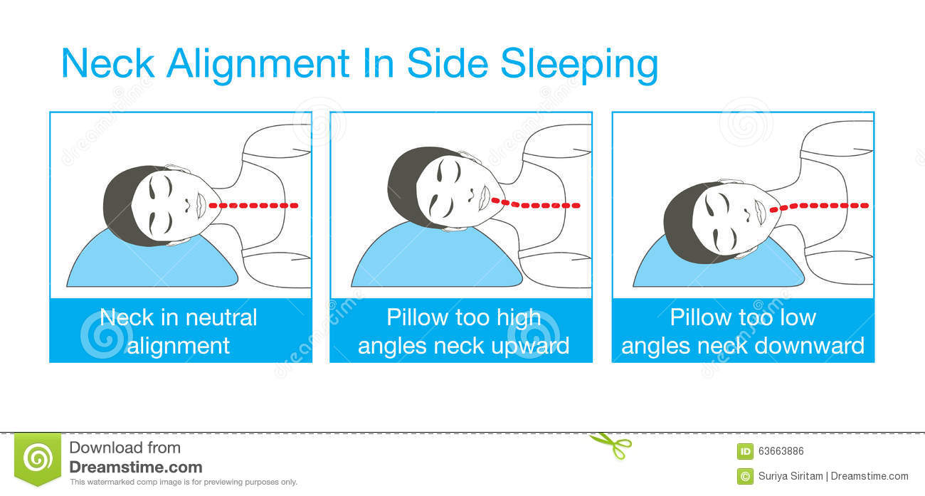 Neck Alignment In Side Sleeping Stock Vector