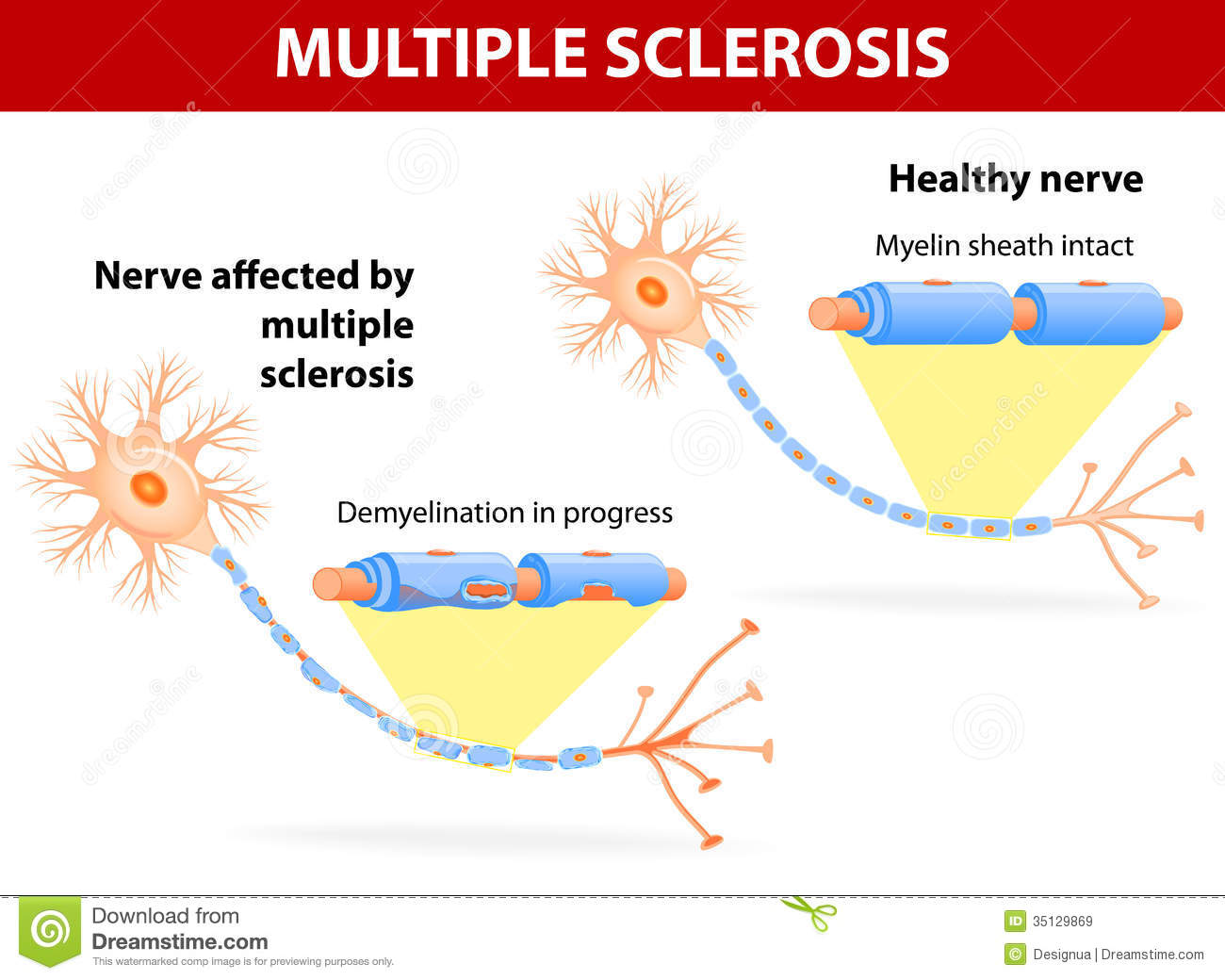 Nerve Affected By Multiple Sclerosis Royalty Free Stock
