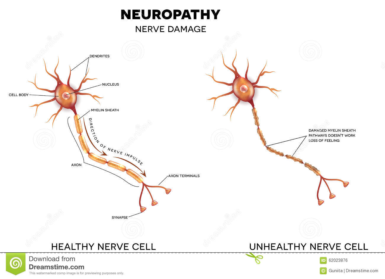 Neuron axon diagram neuron get free image about wiring for What is motor neuropathy