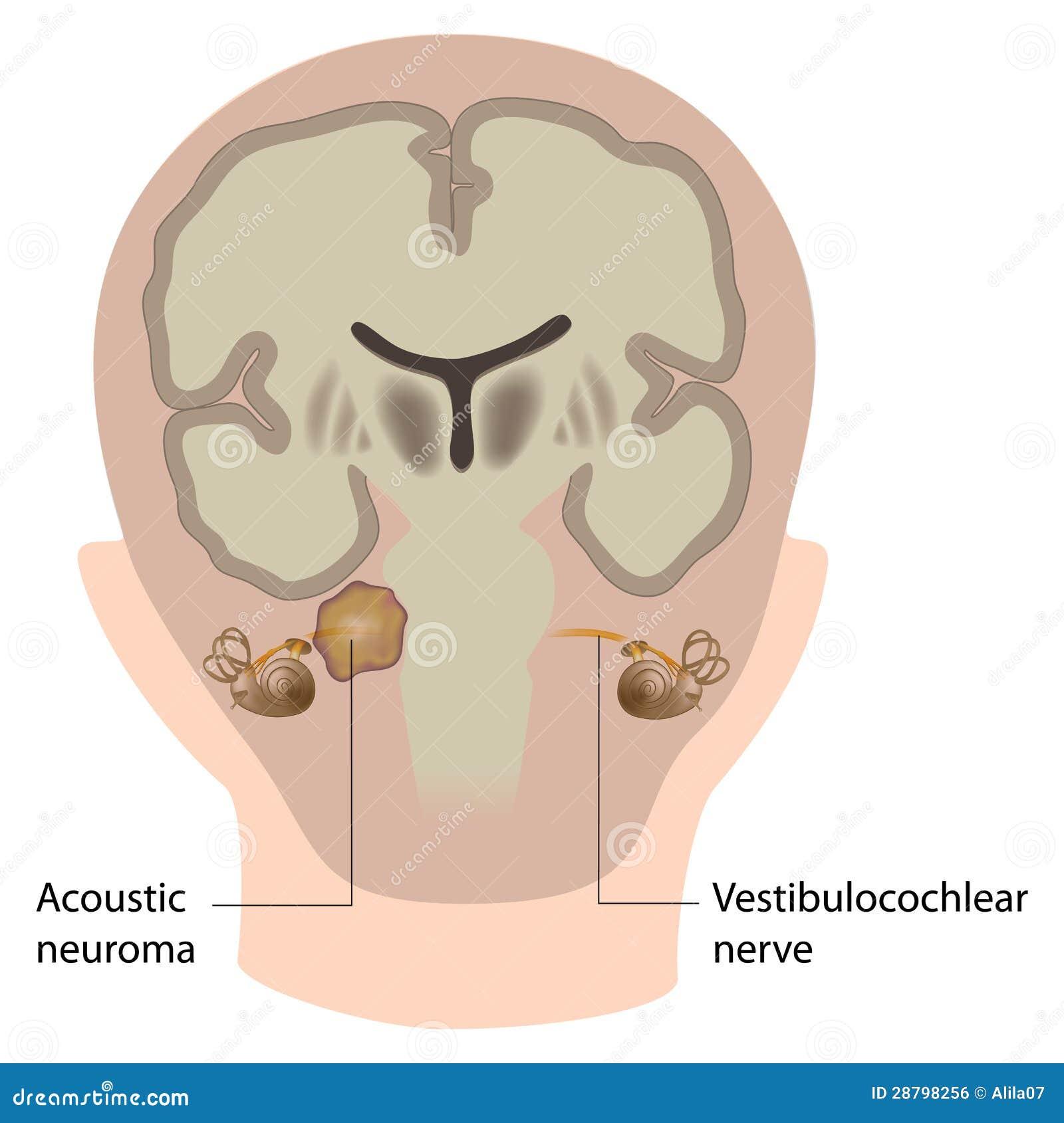 Neuroma acústico
