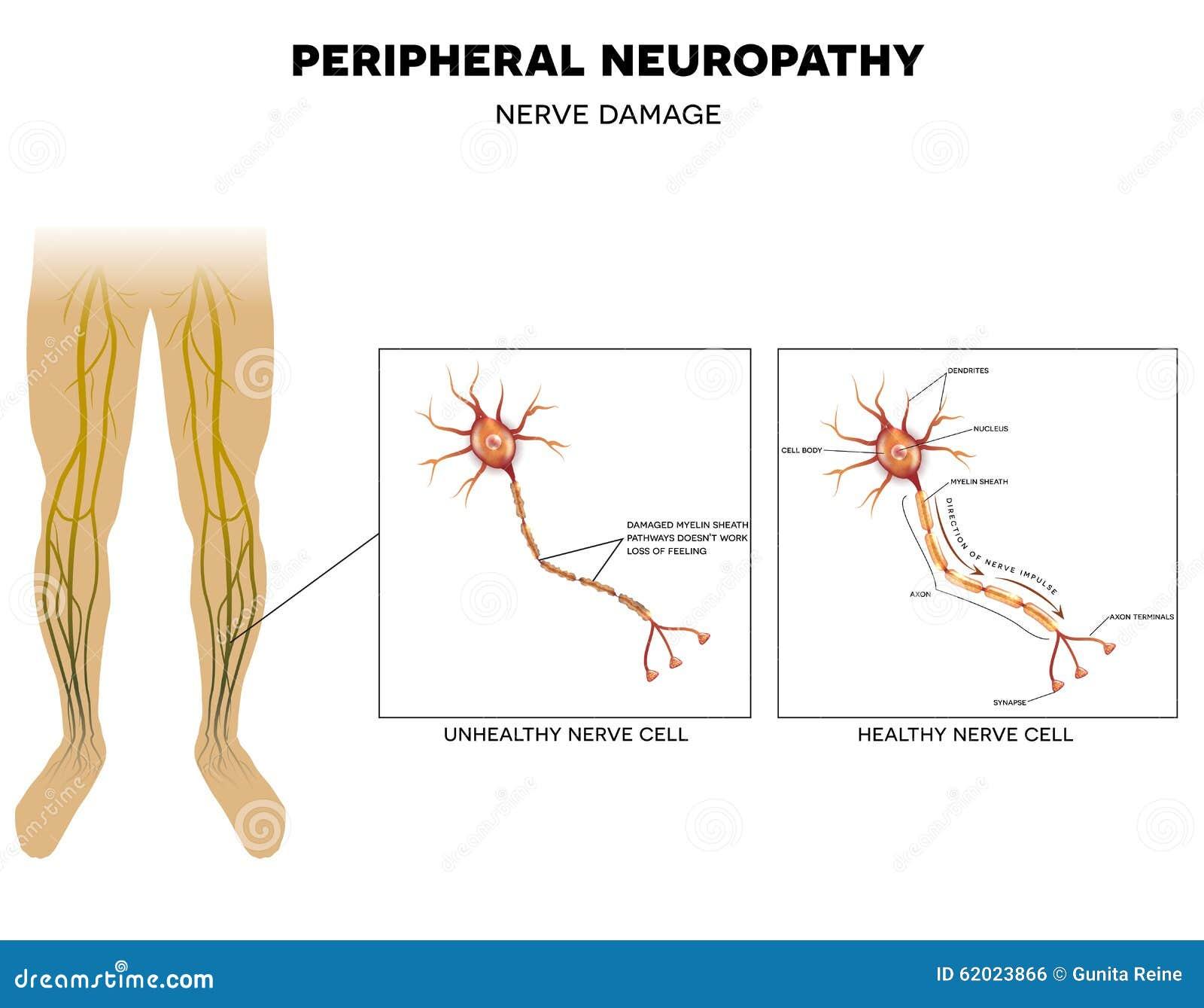 Neuropatía, Daño Del Nervio Ilustración del Vector - Ilustración de ...