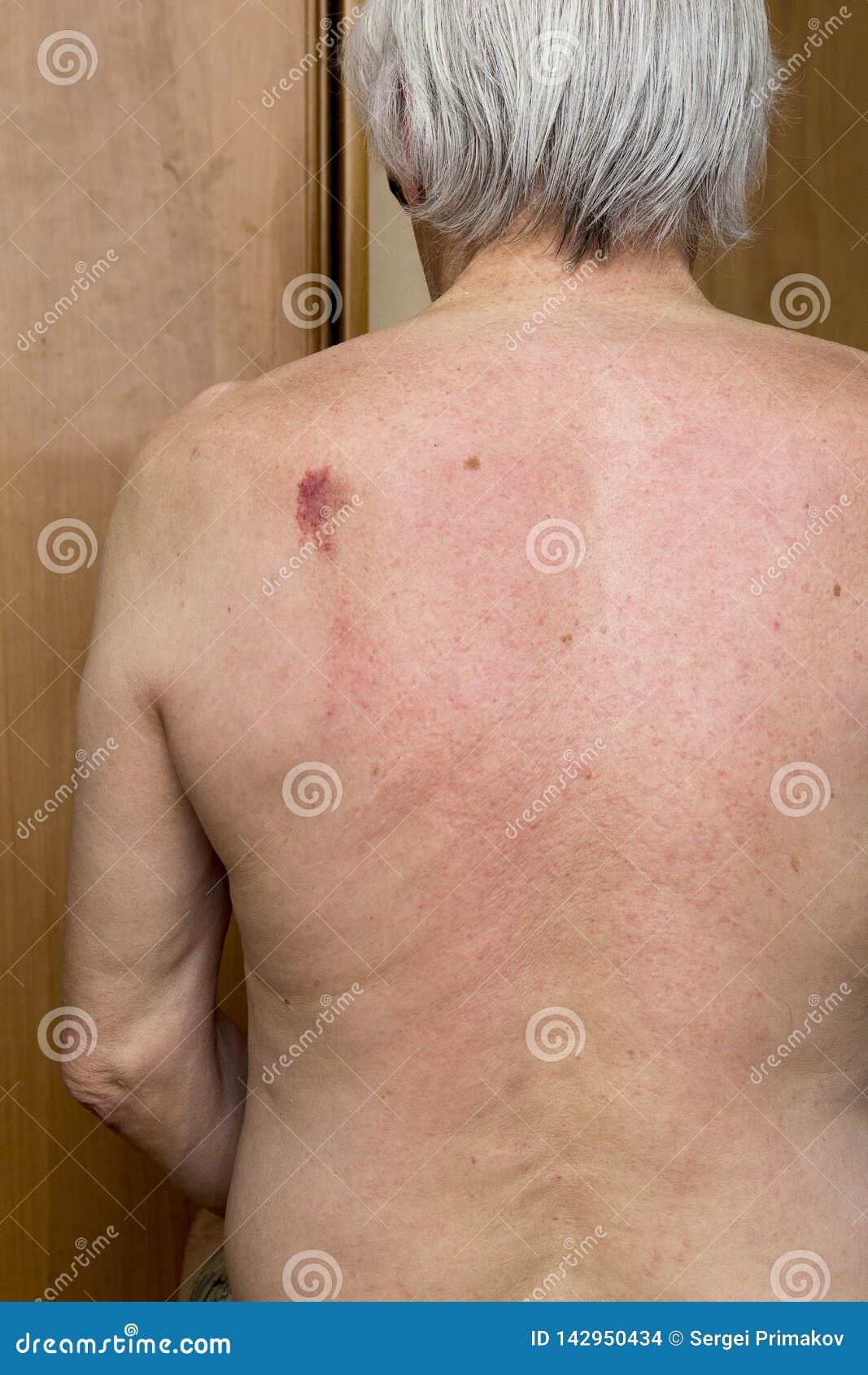 Nevo de la piel de la parte posterior