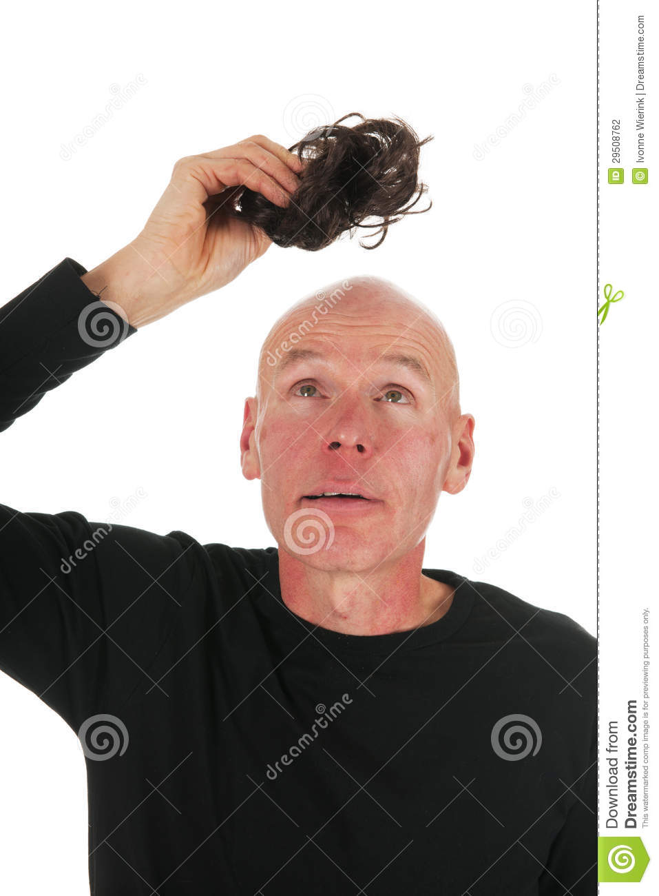 dae1747a9f7a3 New hair for bald man stock photo. Image of adult