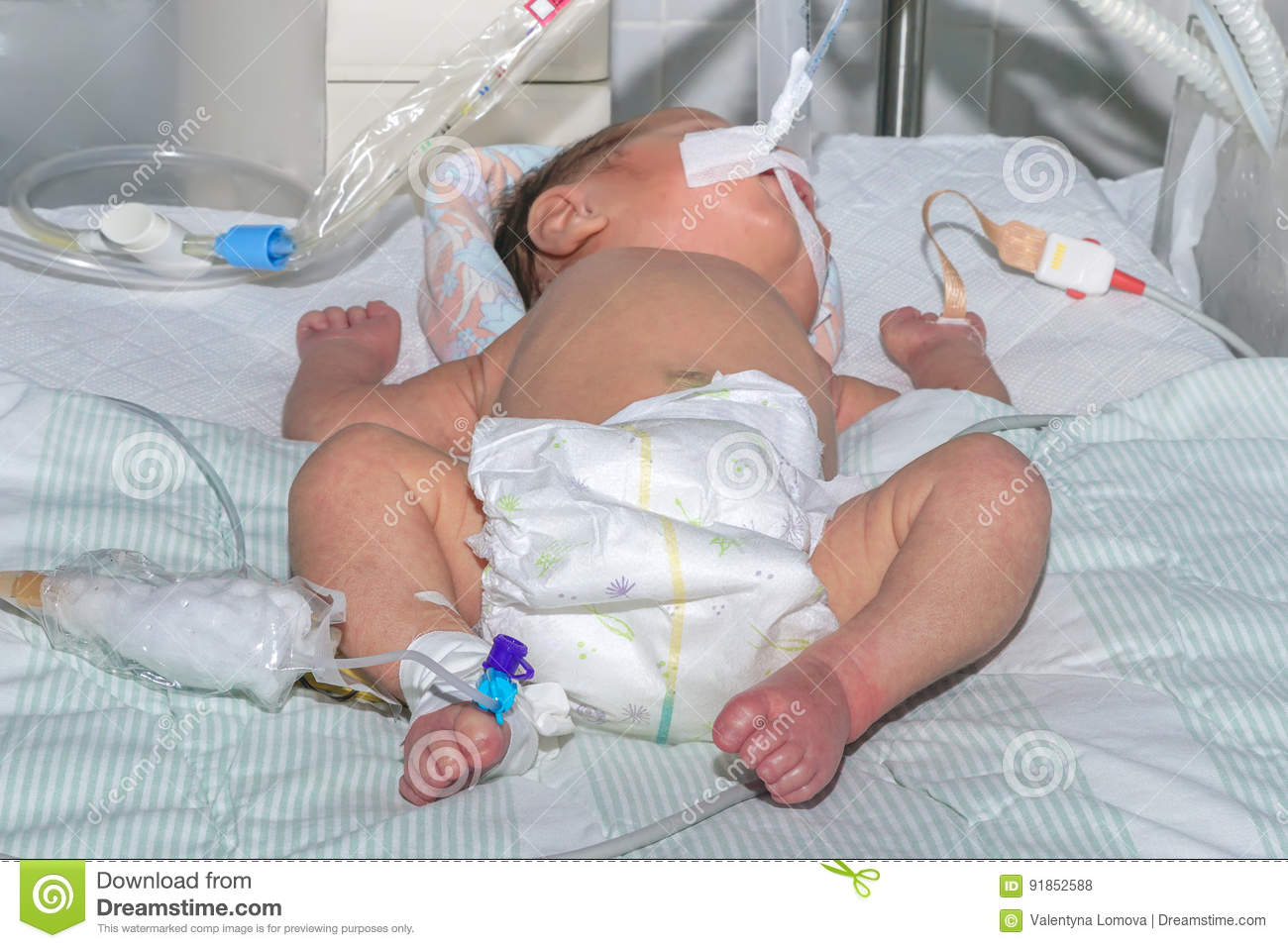 Newborn baby on breathing machine with pulse oximeter sensor and peripheral intravenous catheter at children`s hospital