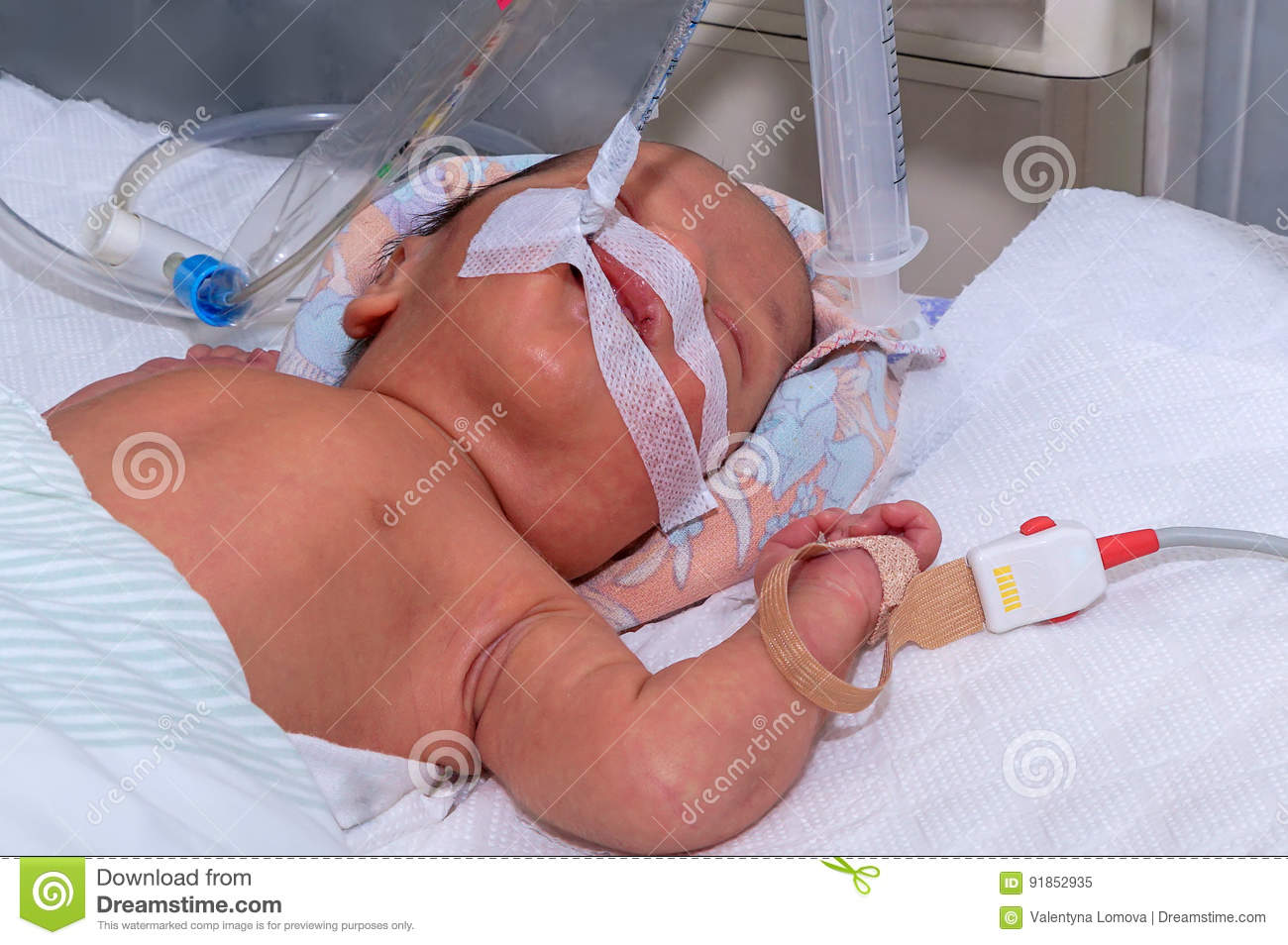 Newborn baby with hyperbilirubinemia on breathing machine with pulse oximeter sensor in neonatal intensive care unit at children`s