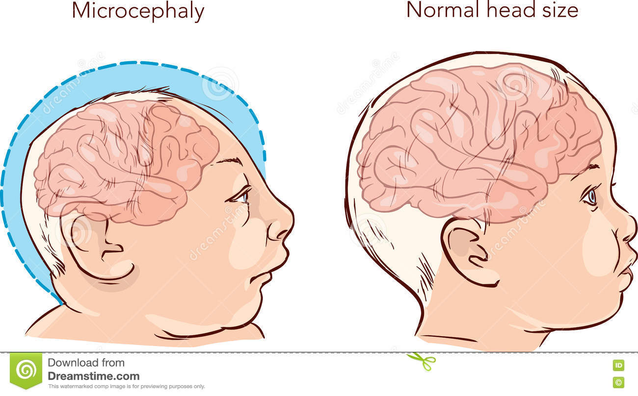 microcephaly disease Healio infectious disease news login register  almost half were born with  brain abnormalities or microcephaly, or both around 9% had.