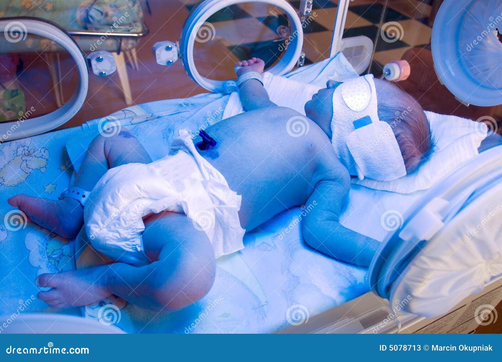 Newborn under blue lamp