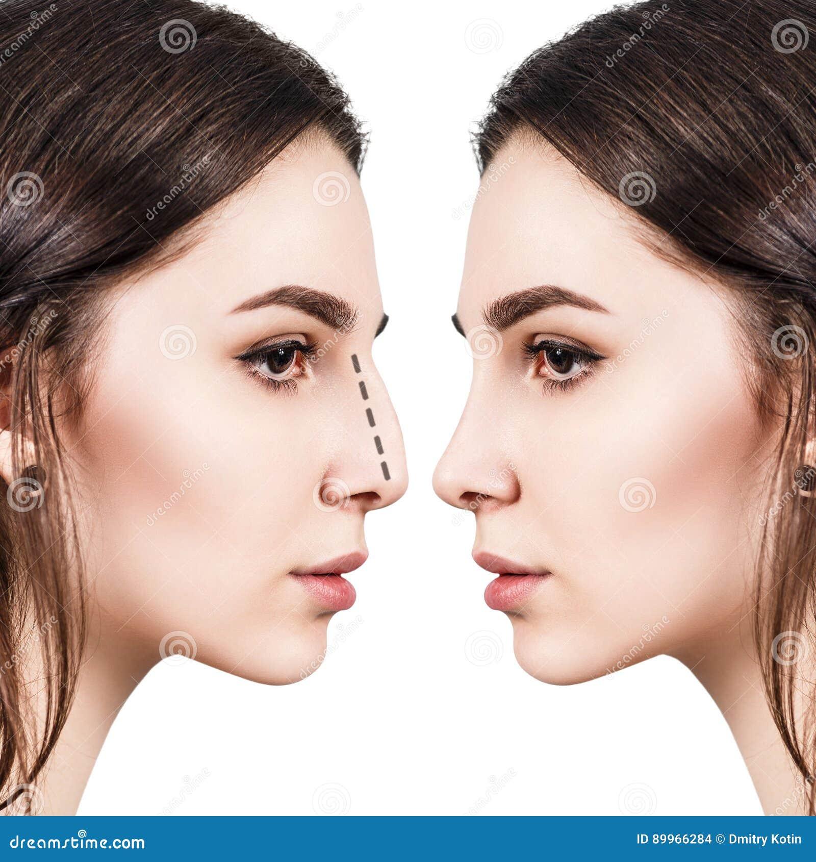 nez femelle avant et apr s la chirurgie esth tique photo stock image 89966284. Black Bedroom Furniture Sets. Home Design Ideas