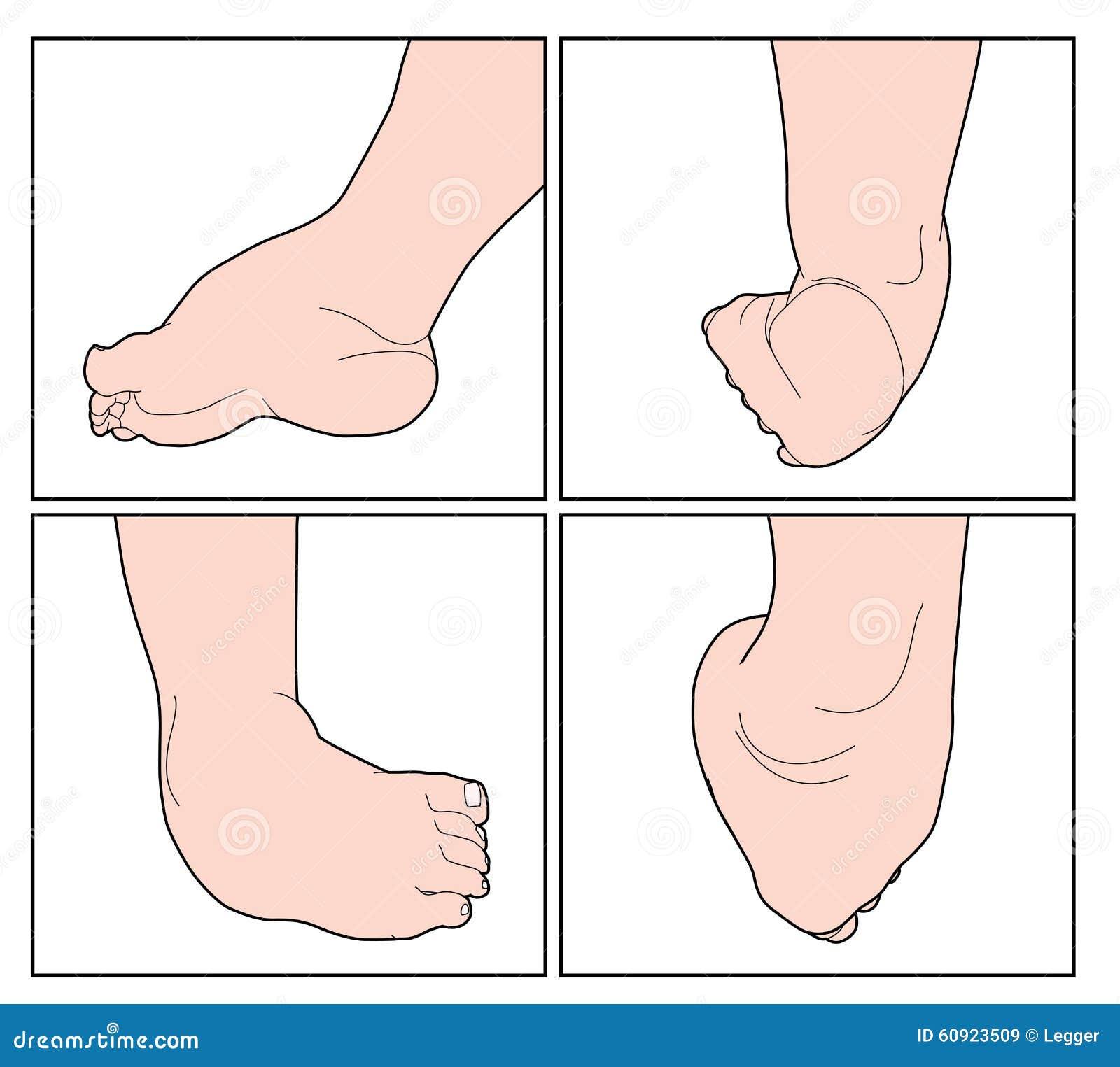 Niño con el pie de club ilustración del vector. Ilustración de ...