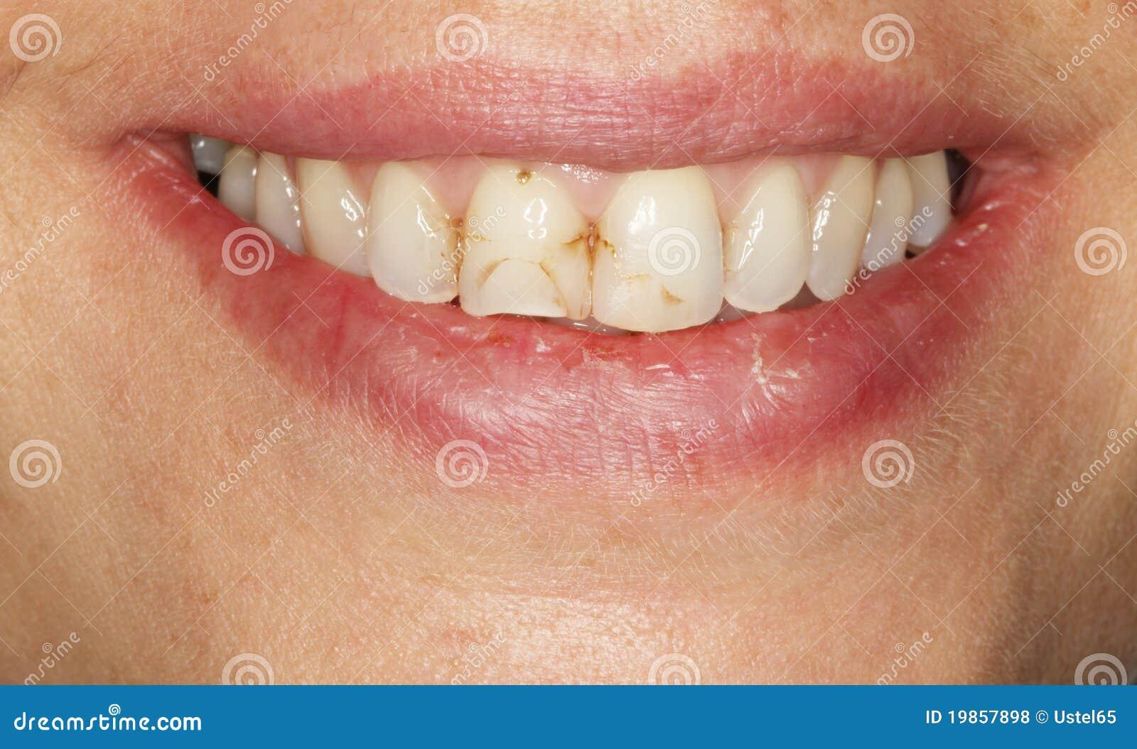 Отбелить зубы в домашних условиях за 1 раз