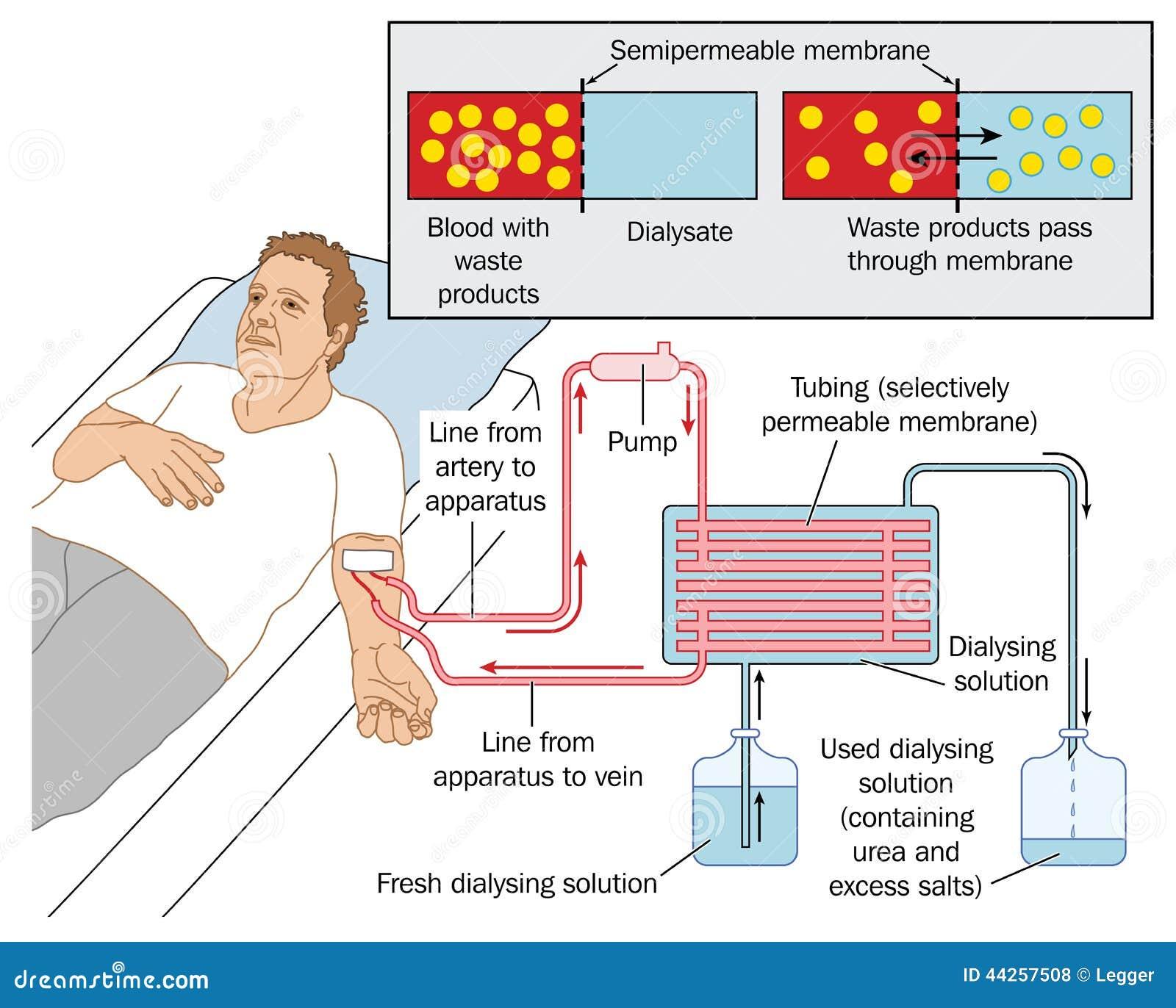 fistule arterio veineuse dialyse pdf