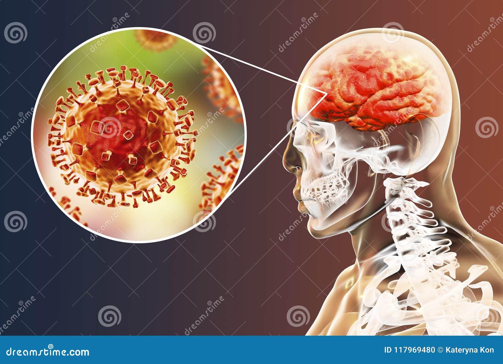 Nipah-Virusinfektion