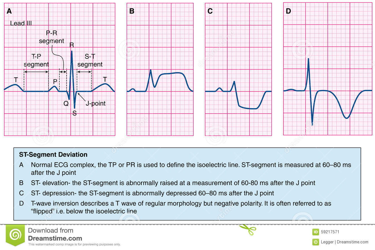 Normal and abnormal ecg traces